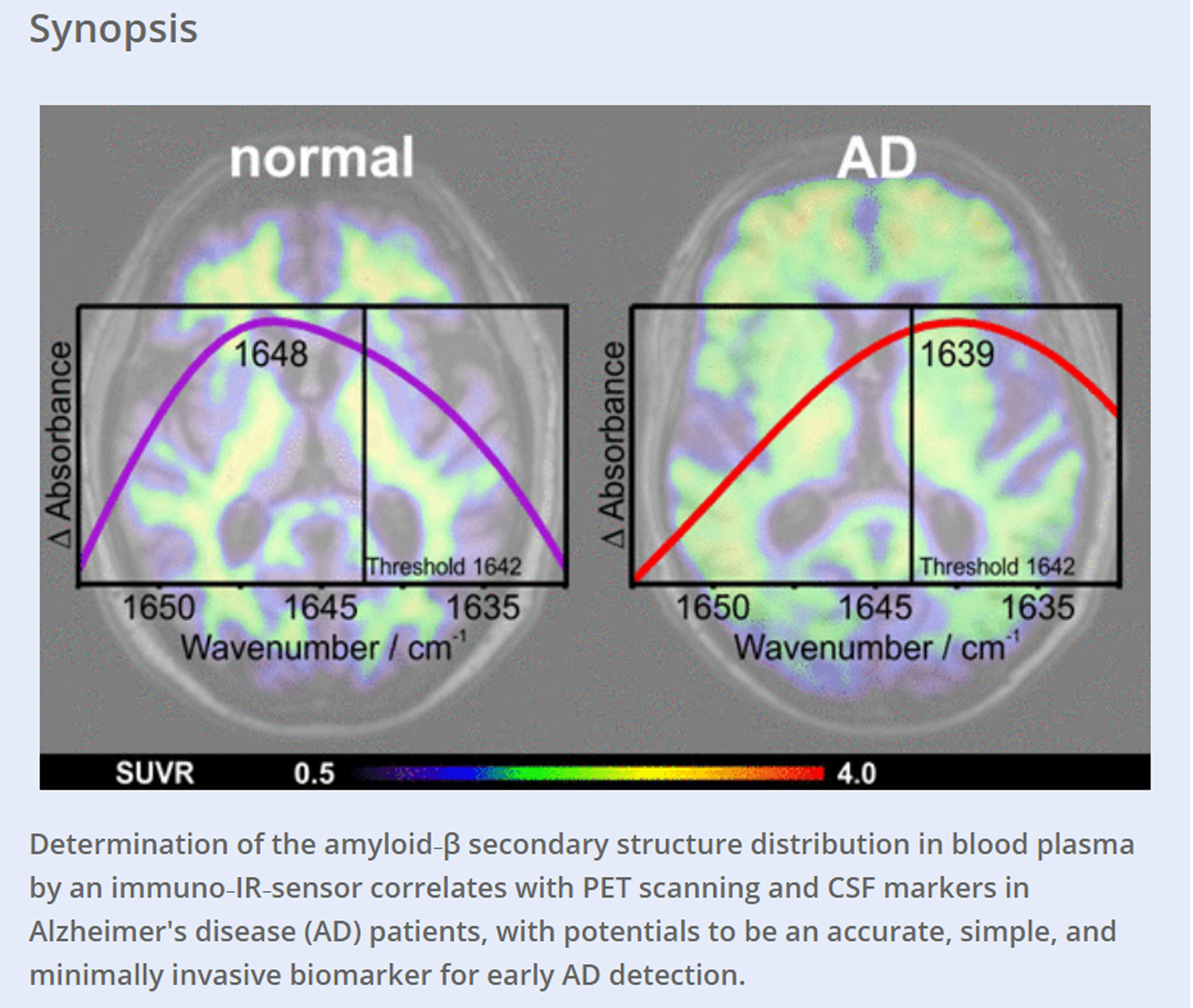 Amyloid blood biomarker detects Alzheimers disease